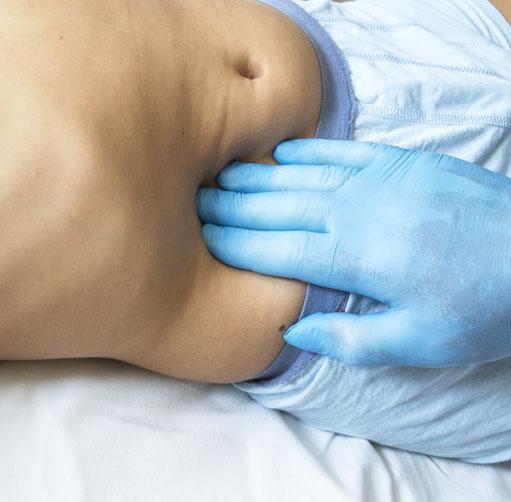 Operacia-slepeho-creva-laparoskopicky