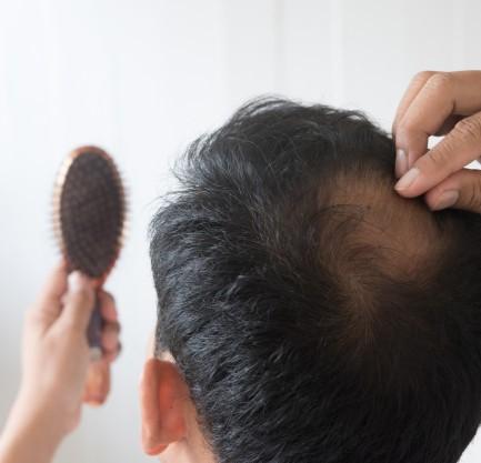 Alopecia_3
